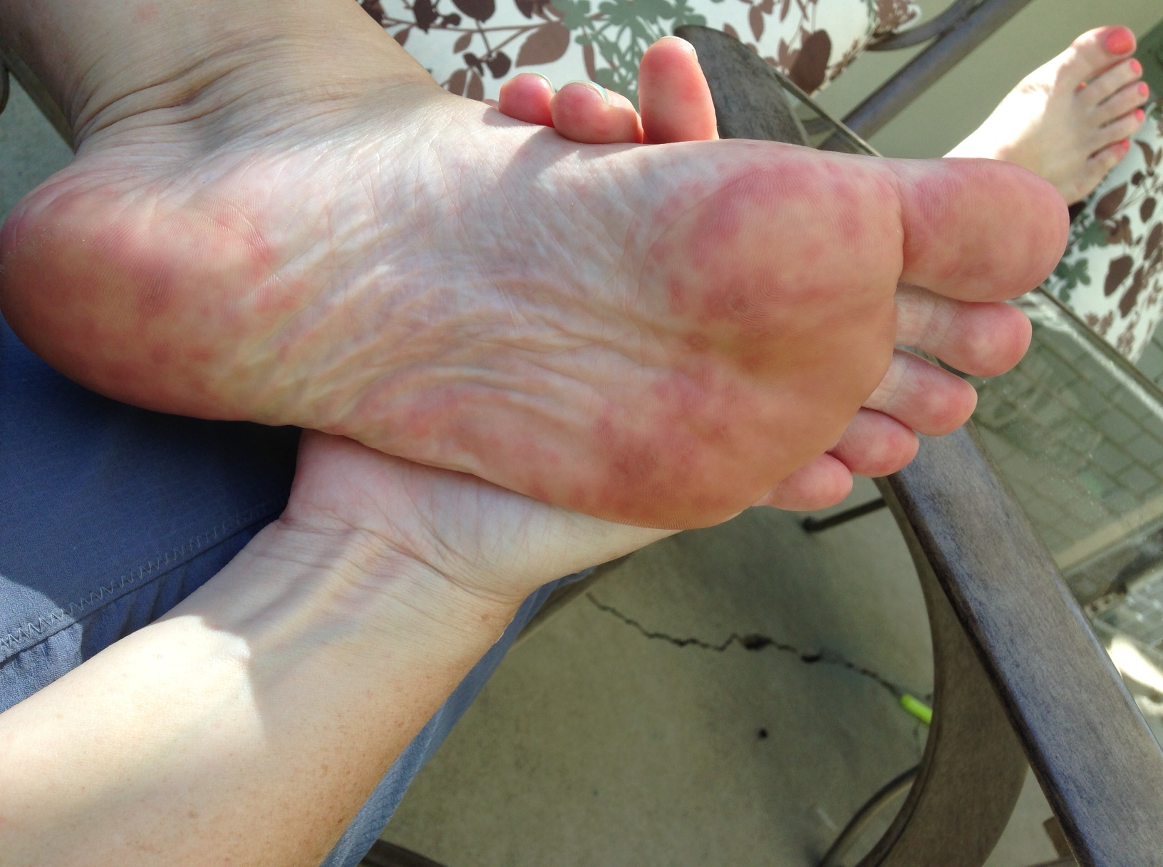 herpes on palm of hand pictures photos